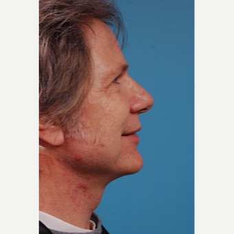65-74 year old man treated with Facelift after 3103744