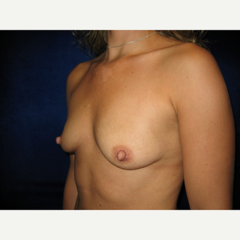 25-34 year old woman treated with Breast Implants before 3765851