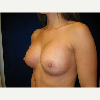 25-34 year old woman treated with Breast Implants after 3765851