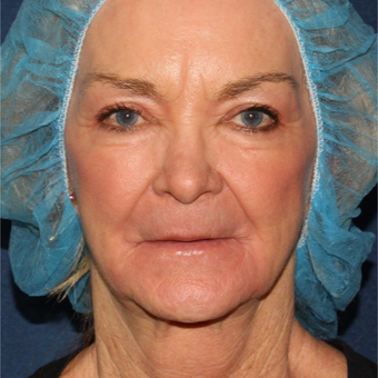 67 year old woman treated one time with Laser Resurfacing after 3630310
