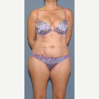 45-54 year old woman treated with Tummy Tuck before 3563650