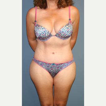 45-54 year old woman treated with Tummy Tuck after 3563650