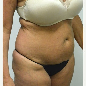45-54 year old woman treated with Mini Tummy Tuck before 2211383