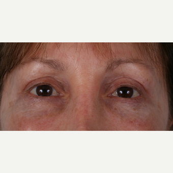 55-64 year old woman treated with Eyelid Surgery after 3055162