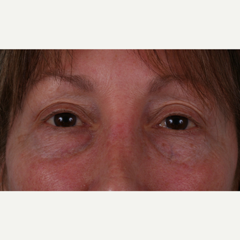 55-64 year old woman treated with Eyelid Surgery before 3055162