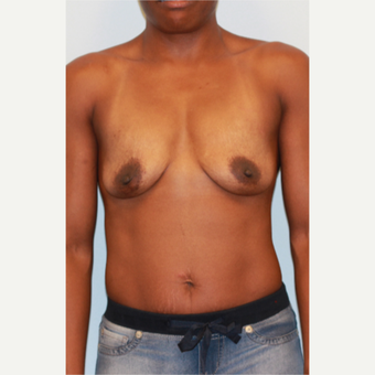 25-34 year old woman treated with Breast Implants before 3563891