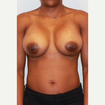 25-34 year old woman treated with Breast Implants after 3563891