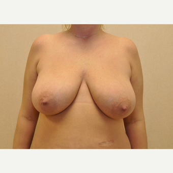 45-54 year old woman treated with Breast Reconstruction before 3127882