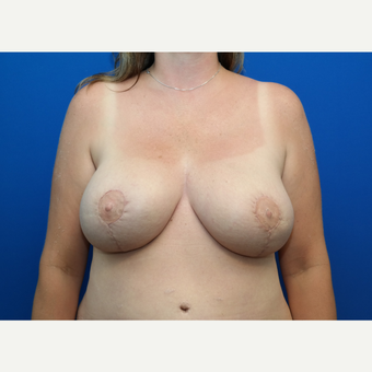 45-54 year old woman treated with Breast Reconstruction after 3127882