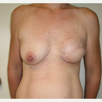 35-44 year old woman treated with Breast Reconstruction after 3434942
