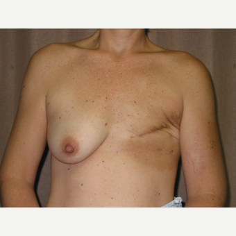 35-44 year old woman treated with Breast Reconstruction before 3434942