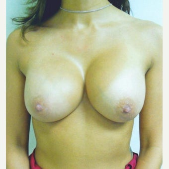 Breast Augmentation Saline Implants after 1981515