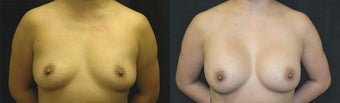 32 year old woman treated with Breast Augmentation before 2990414