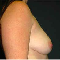 30 year old woman treated with Breast Lift with Implants before 3665838