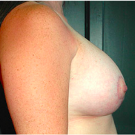 30 year old woman treated with Breast Lift with Implants after 3665838
