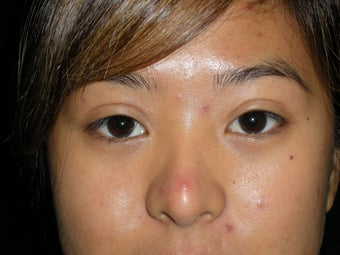 Asian eyelid surgery after 380455