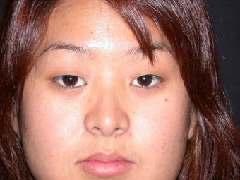 Asian eyelid surgery before 380455
