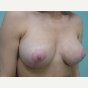 35-44 year old woman treated with Breast Augmentation after 3168235