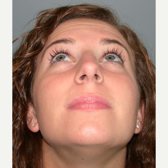 18-24 year old woman treated with Rhinoplasty before 3692299