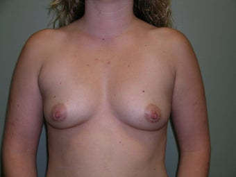 26 Year Old Female - Breast Augmentation before 1446768