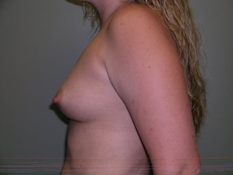 26 Year Old Female - Breast Augmentation 1446768