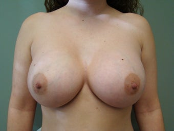 26 Year Old Female - Breast Augmentation after 1446768