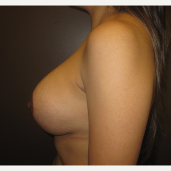 35-44 year old woman treated with Breast Lift with Implants after 3321173