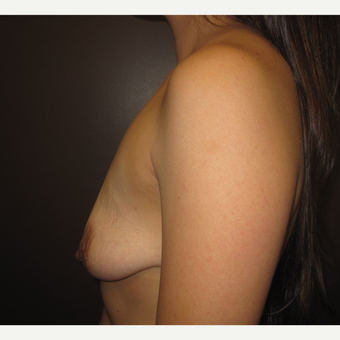 35-44 year old woman treated with Breast Lift with Implants before 3321173