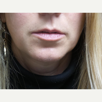 35-44 year old woman treated with Juvederm. before 3528644
