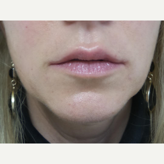 35-44 year old woman treated with Juvederm. after 3528644