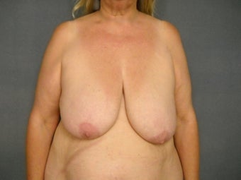 "Age: 59, Height: 5""5"", Weight: 195 before 1010470"