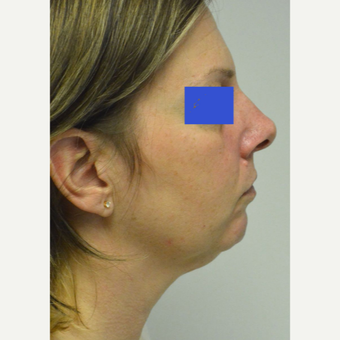 45-54 year old woman treated with Chin Implant before 3224986