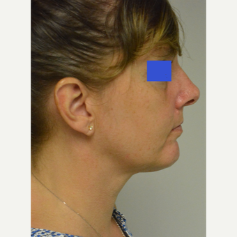 45-54 year old woman treated with Chin Implant after 3224986