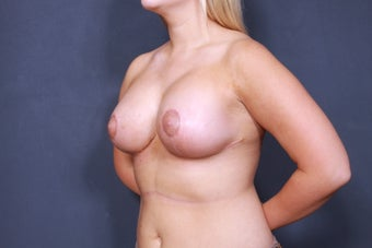 Breast lift with breast implants 3265920