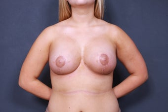 Breast lift with breast implants after 3265920