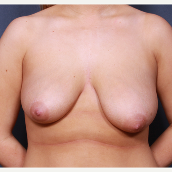 Breast lift with breast implants before 3265920