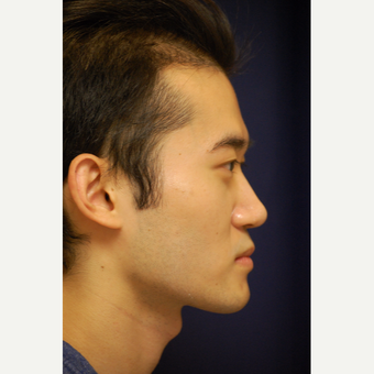 18-24 year old man treated with Rhinoplasty after 3688881