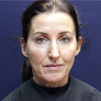 45-54 year old woman treated with Injectable Fillers before 3202219