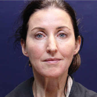 45-54 year old woman treated with Injectable Fillers after 3202219
