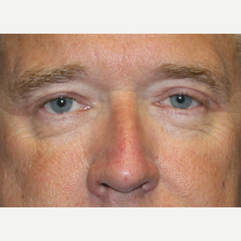 55-64 year old man treated with Eyelid Surgery after 3702048