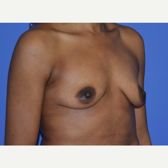 Breast Augmentation with Ideal Saline Breast Implants 350 cc before 3080178