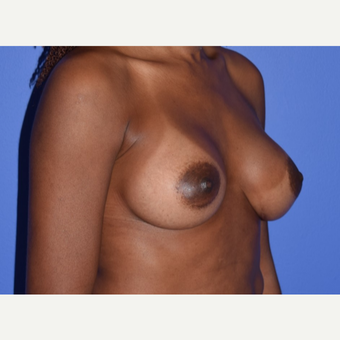 Breast Augmentation with Ideal Saline Breast Implants 350 cc after 3080178