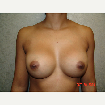 18-24 year old woman treated with Breast Augmentation after 3656858