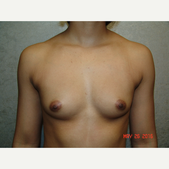 18-24 year old woman treated with Breast Augmentation before 3656858