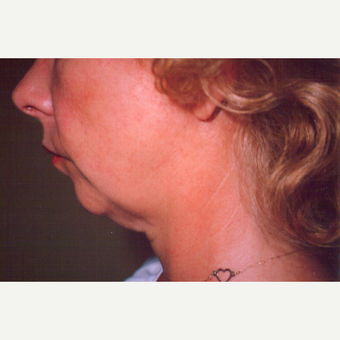45-54 year old woman treated with Facelift before 3542947