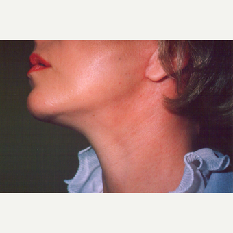45-54 year old woman treated with Facelift after 3542947
