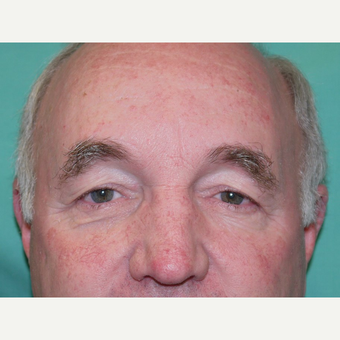 Eyelid Surgery before 3743976