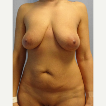 35-44 year old woman treated with Mommy Makeover before 3203210