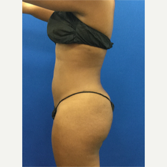 25-34 year old woman treated with Liposuction after 3142181