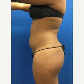 25-34 year old woman treated with Liposuction before 3142181